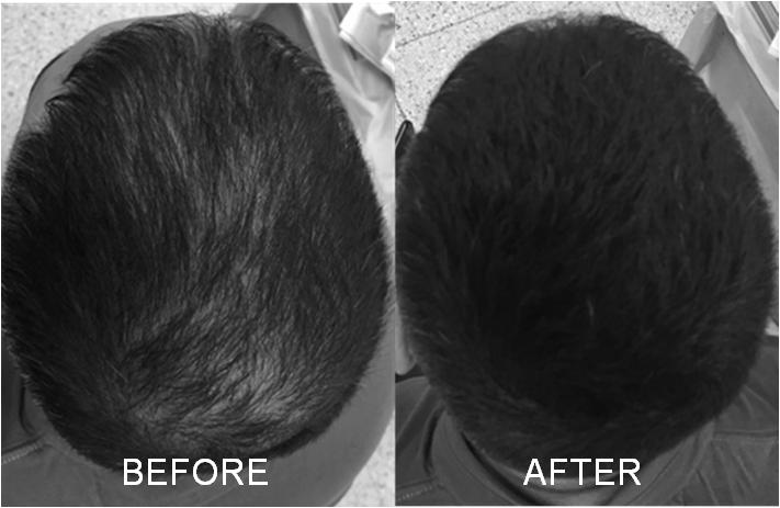 Nanogen Keratin Hair Fibres Plaukų efektą sukurianti pudra-skaidulos, 30g
